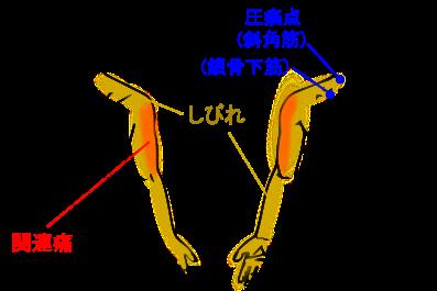 【症例】肩、腕、手の痛みとしびれ