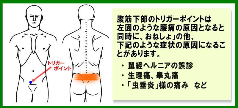 腹直筋下部の症状