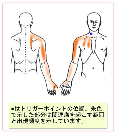 トリガーポイントの関連痛