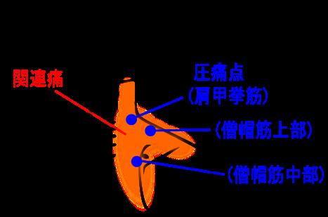 【症例】首、肩、肩甲骨内側の痛み