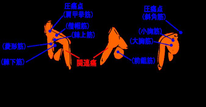 【症例】胸部、上背部の痛み