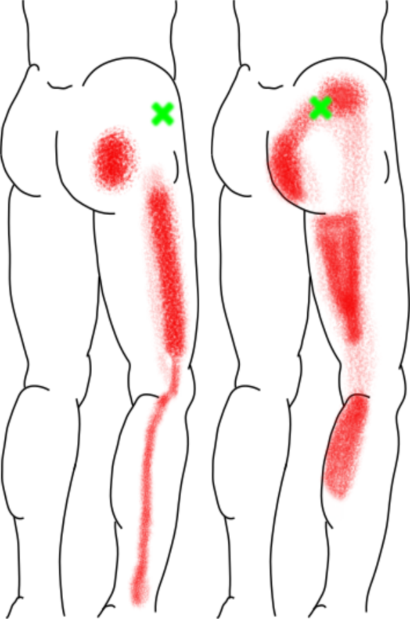 小臀筋が起こす痛み・しびれ