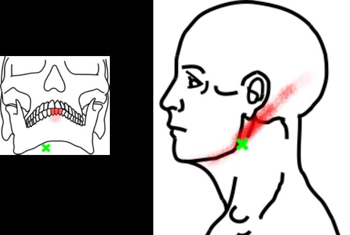 顎二腹筋が起こす痛み・しびれ