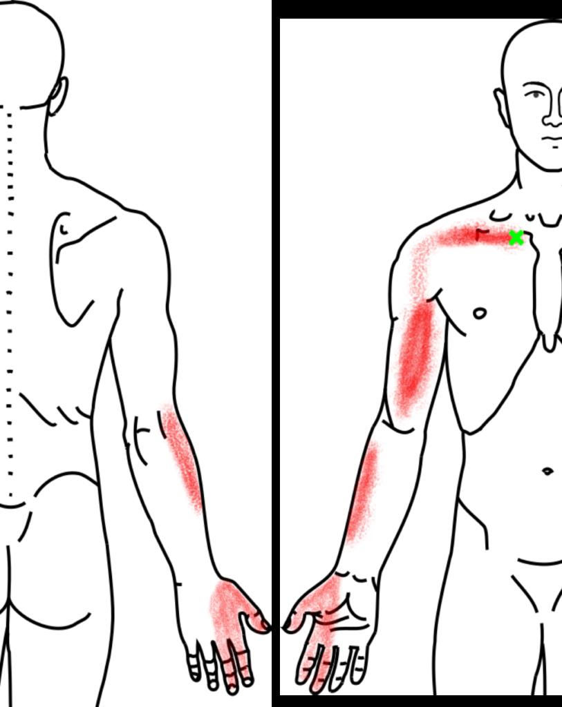 鎖骨下筋が起こす痛み・しびれ