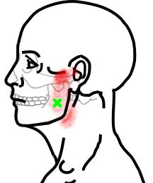内側翼突筋が起こす痛み・しびれ