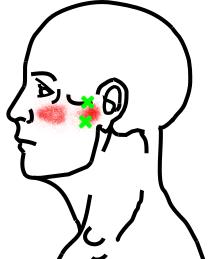 外側翼突筋が起こす痛み・しびれ