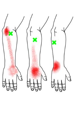 手根伸筋が起こす痛み・しびれ