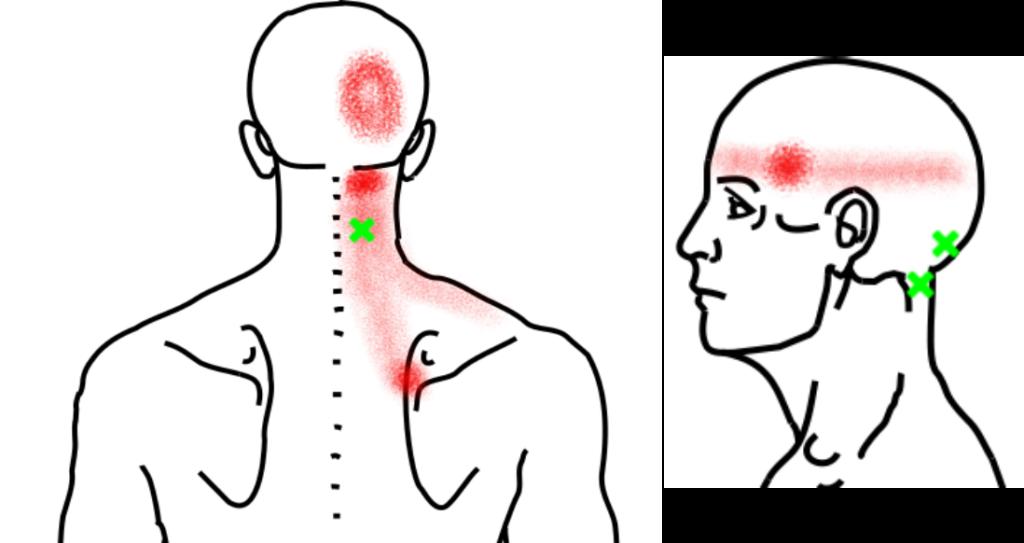 頭半棘筋が起こす痛み・しびれ