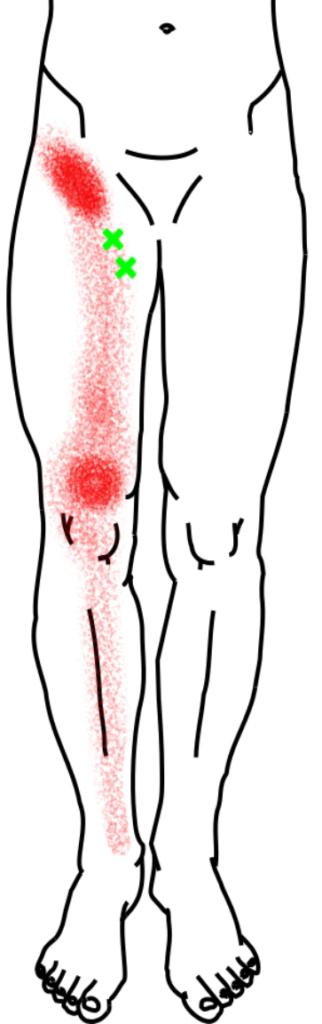 長・短内転筋が起こす痛み・しびれ