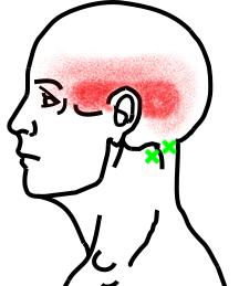 後頭下筋群が起こす痛み・しびれ