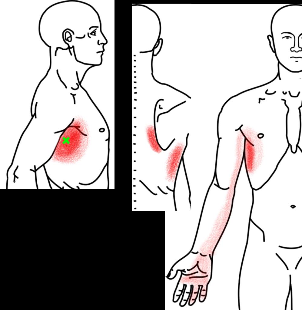 前鋸筋が起こす痛み・しびれ