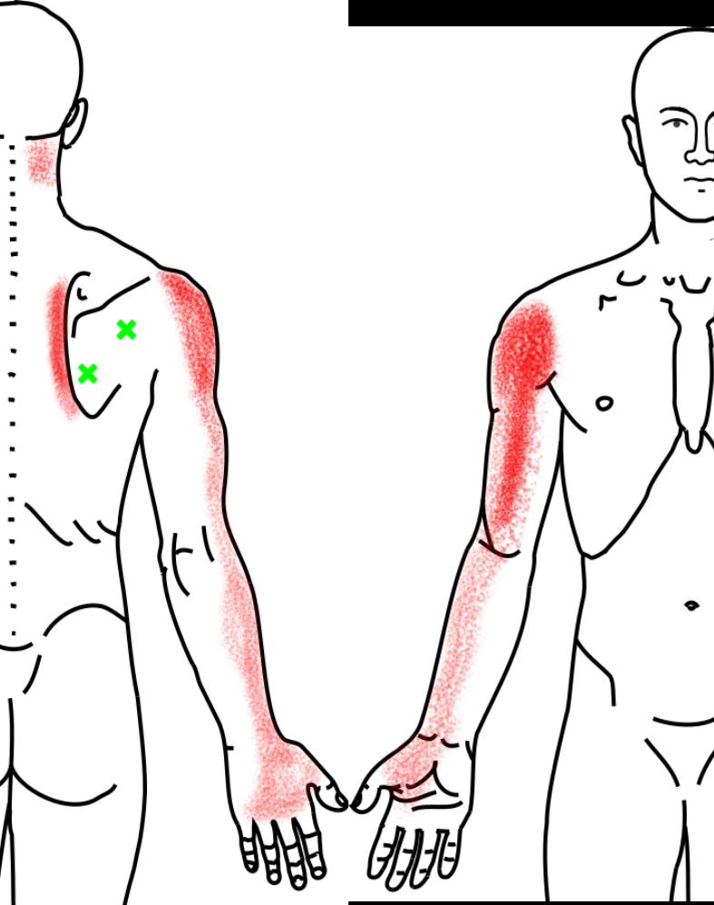 棘下筋が起こす痛み・しびれ