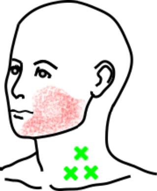 広頚筋が起こす痛み・しびれ