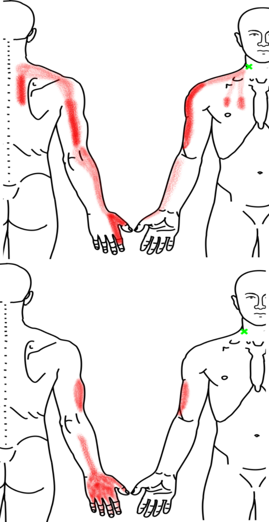 斜角筋が起こす痛み・しびれ
