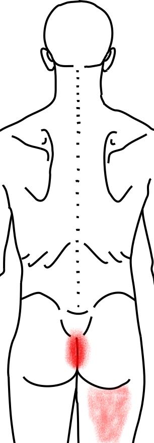 骨盤底筋群が起こす痛み・しびれ