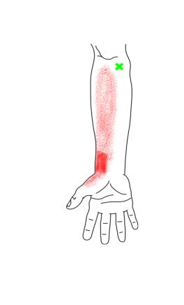 円回内筋と方形回内筋が起こす痛み・しびれ