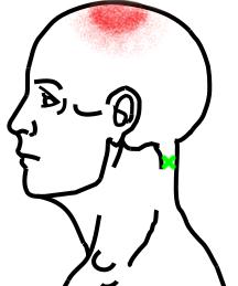 頭板状筋が起こす痛み・しびれ