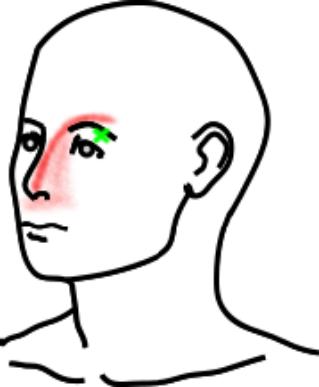 眼輪筋が起こす痛み・しびれ