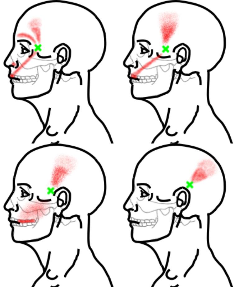 側頭筋が起こす痛み・しびれ