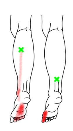 長趾屈筋・長母指屈筋が起こす痛み・しびれ