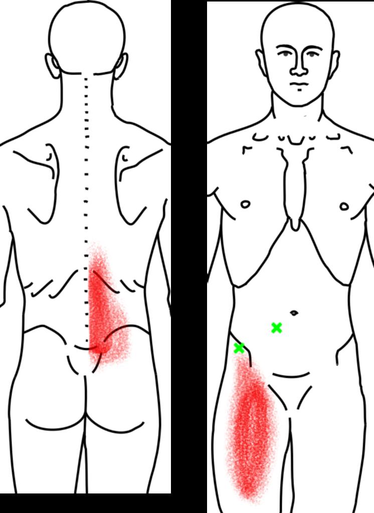 腸腰筋が起こす痛み・しびれ