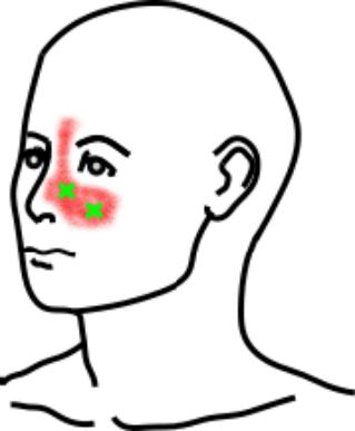 頬骨筋と上唇挙筋が起こす痛み・しびれ