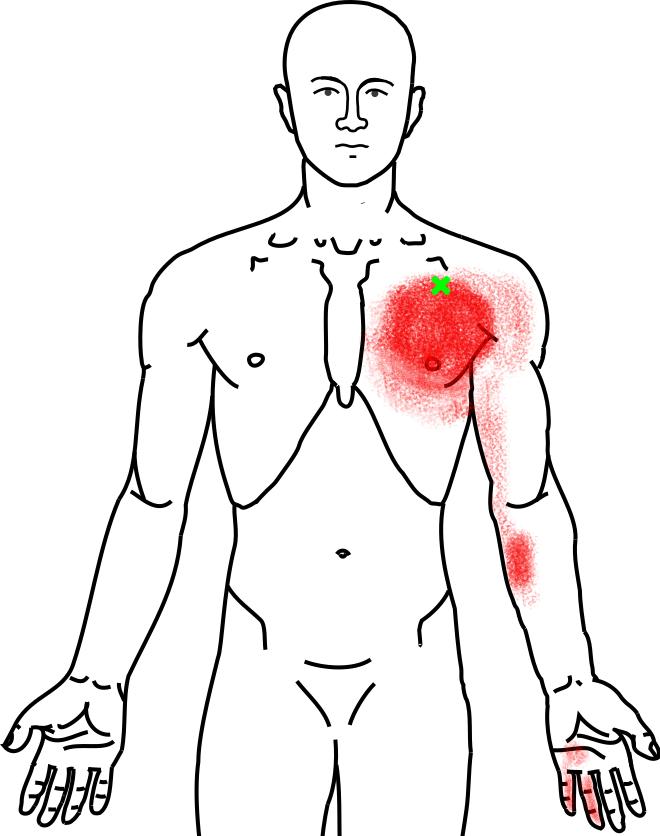 大胸筋が起こす痛み・しびれ