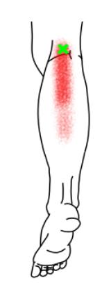 足底筋が起こす痛み・しびれ