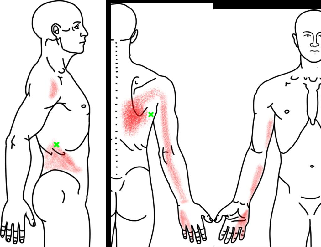広背筋が起こす痛み・しびれ