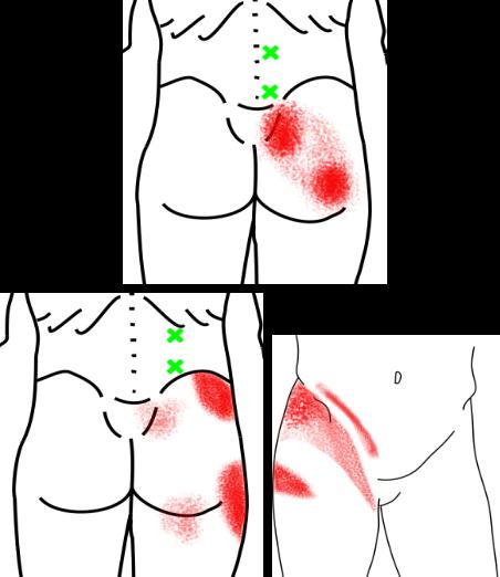 腰方形筋が起こす痛み・しびれ