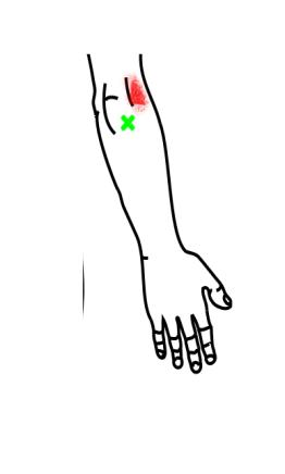 肘筋が起こす痛み・しびれ
