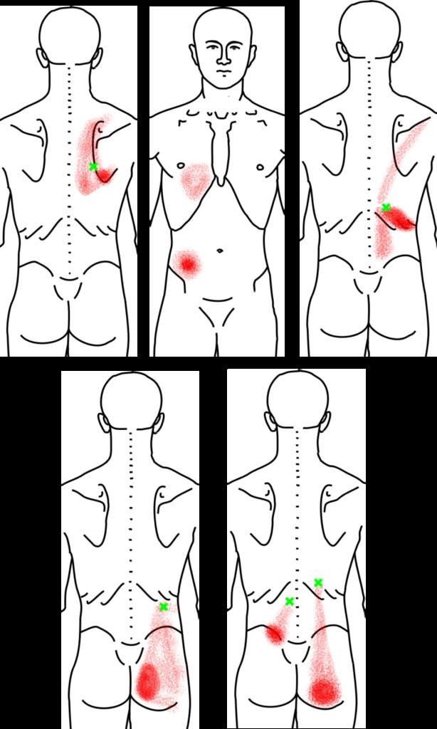 脊柱起立筋が起こす痛み・しびれ