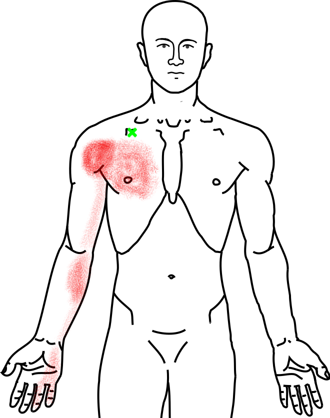小胸筋が起こす痛み・しびれ