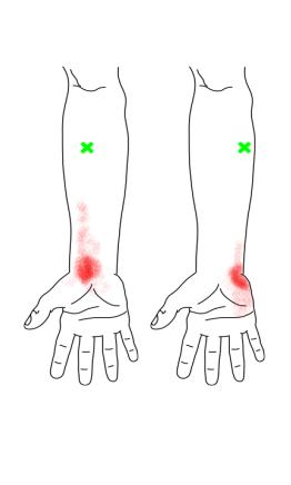 手根屈筋が起こす痛み・しびれ