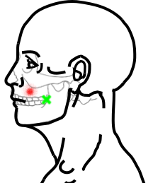 頬筋が起こす痛み・しびれ