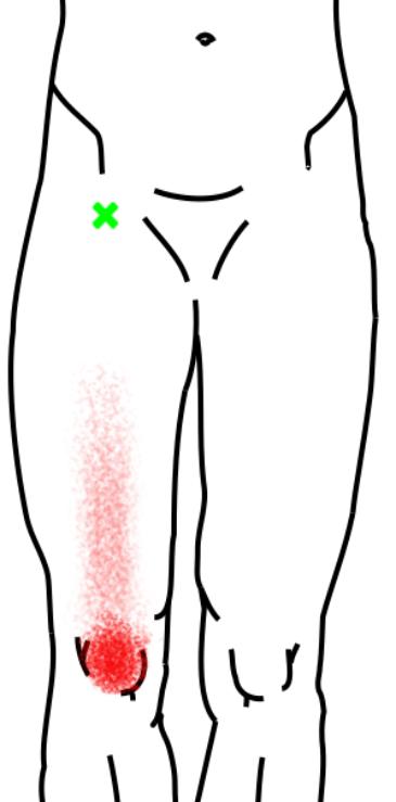 大腿直筋が起こす痛み・しびれ